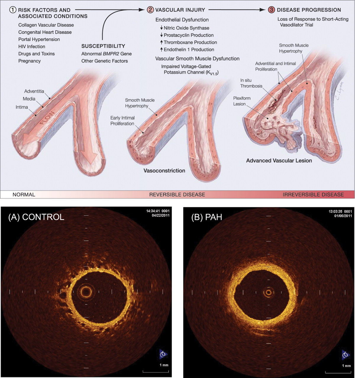 how hereditary predisposition cause clot