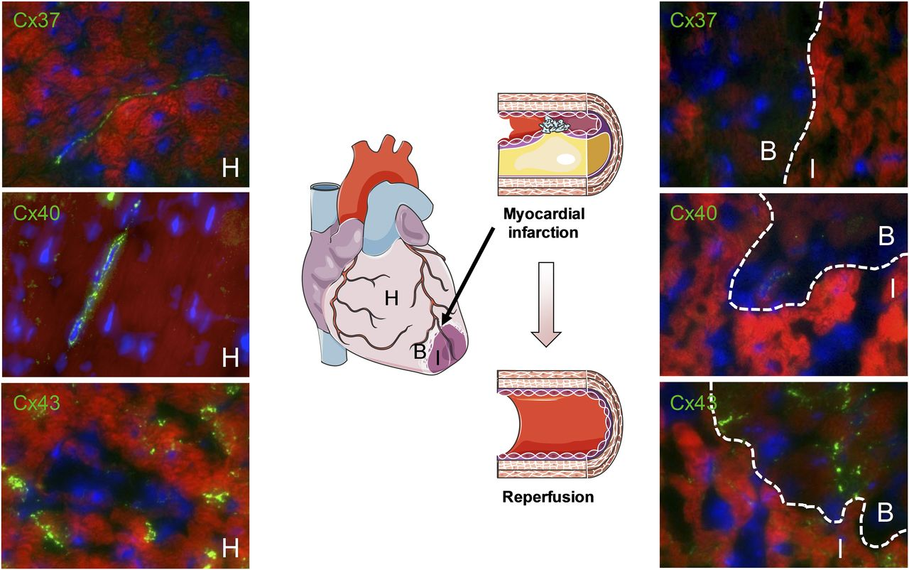 Connexins In Cardiovascular And Neurovascular Health And Disease